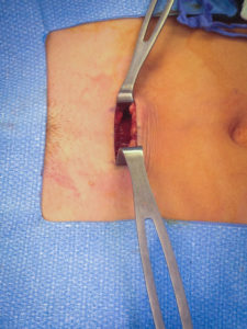 Incision retracted